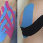 medical taping zeewolde